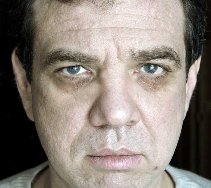 Человек с бледным лицом