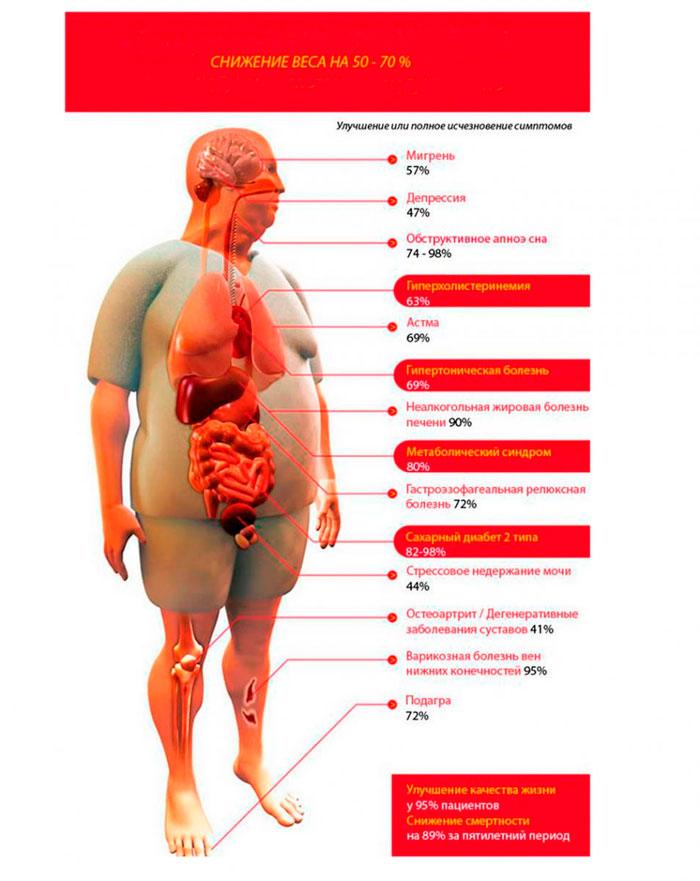 Болезни при ожирении