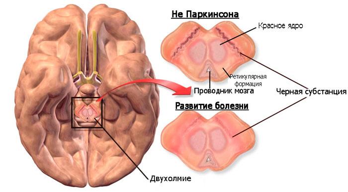 Изменения в головном мозге человека при болезни Паркинсона