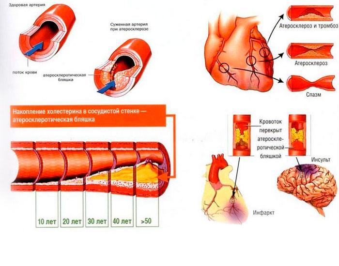 Развитие атеросклероза с возрастом