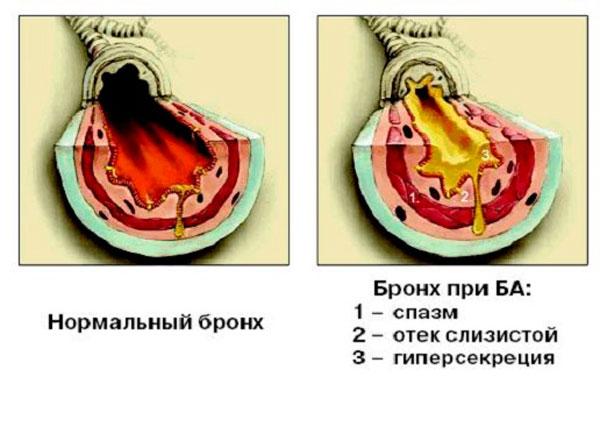 Изменения бронхов при бронхиальной астме