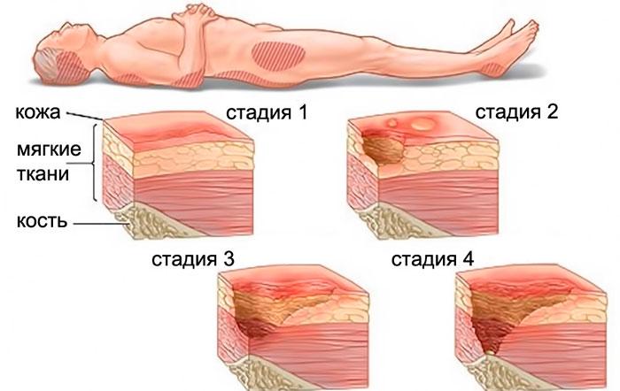 4 стадия пролежней