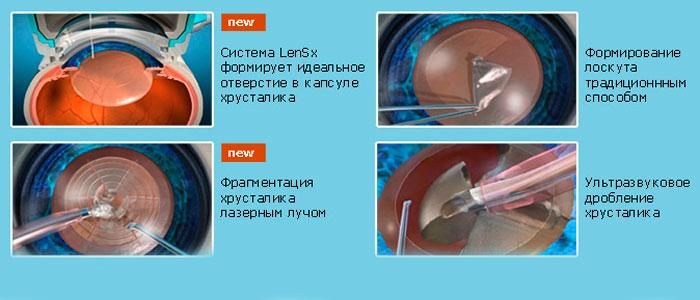 Методы лечения катаракты