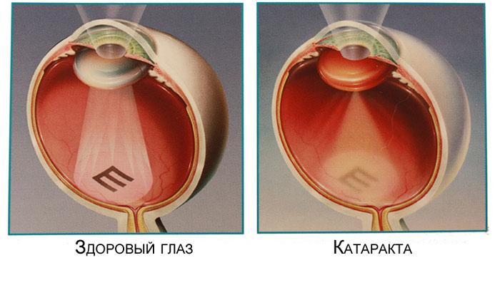 Зрение здорового глаза и глаза с катарактой