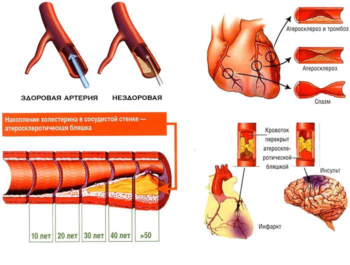 Факторы атеросклероза при ишемической болезни сердца