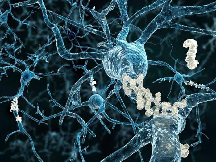 Отмирание нейронов в мозге