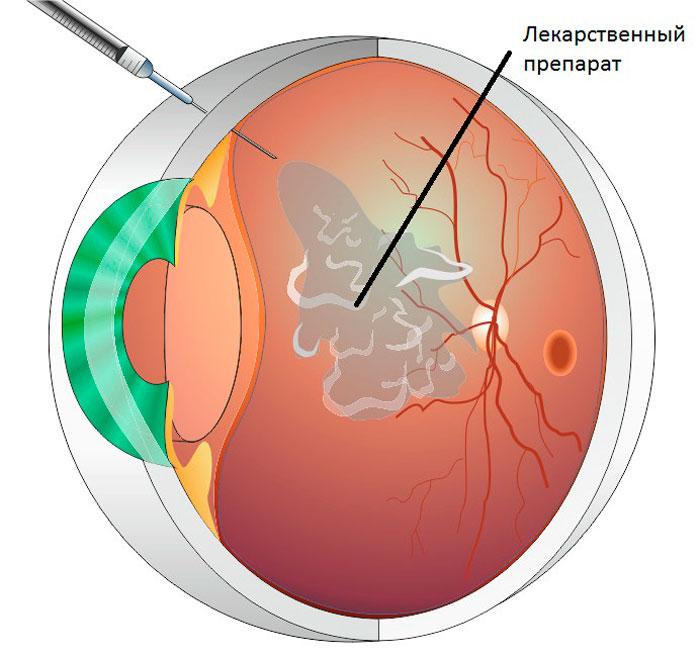 Лечение диабетической ретинопатии: интравитреальные инъекции