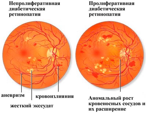 Пролиферативная и непролиферативная ретинопатия