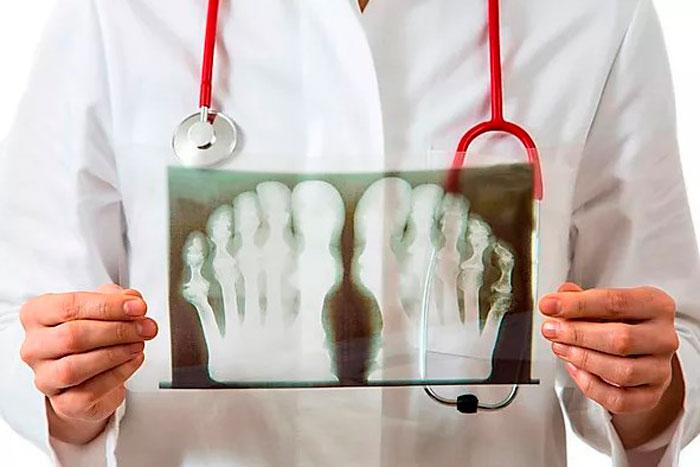 Рентген подагры
