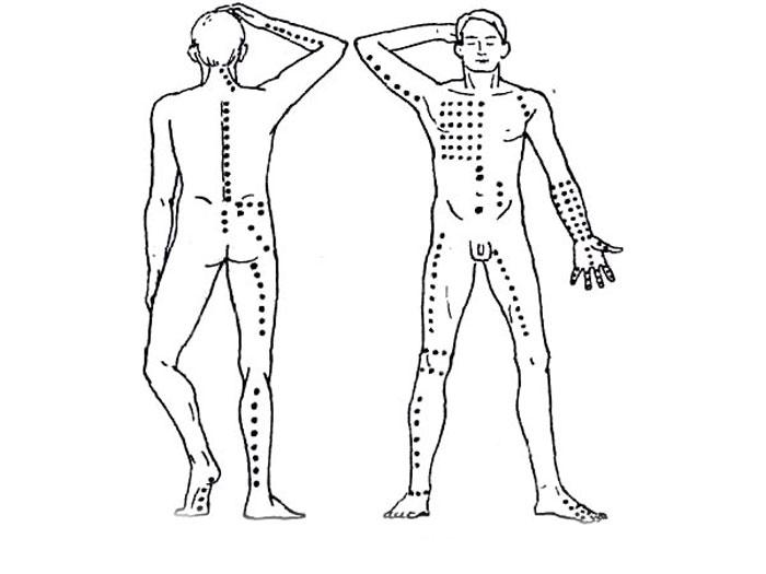 Точки для постановок пиявок на теле человека