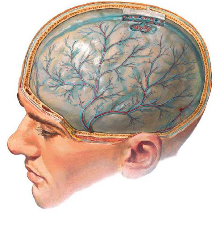 Воспаленный мозг при менингите