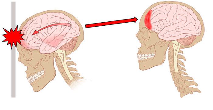 Ушиб черепа