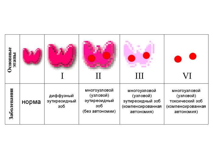 Этапы естественного течения йододефицитного зоба