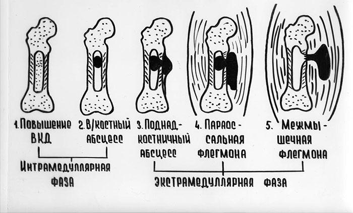 Стадии остеомиелита