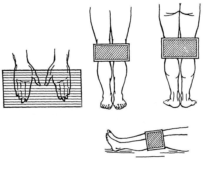 Воздействие ДМВ на кисти и коленные суставы