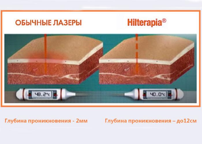 Глубина проникновения лазера ХИЛТ терапии и обычного лазера