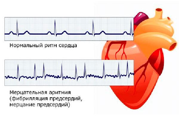 Нормальный ритм сердца и ритм при мерцательной аритмии