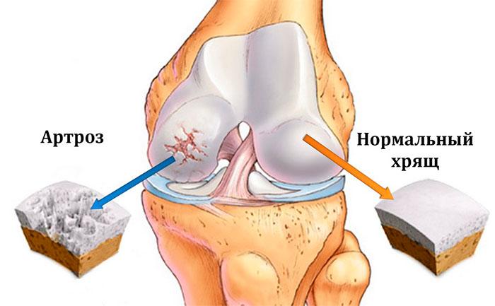 Больной и сустав пораженный остеоартрозом