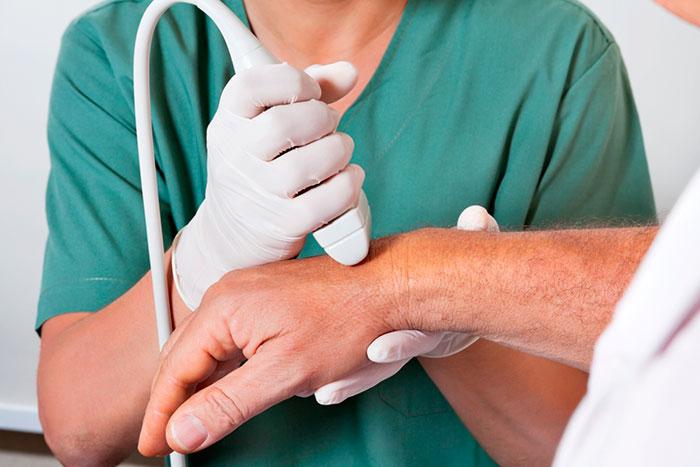 Лечение остеоартроза рук