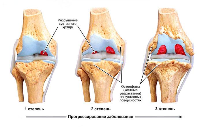 Степени развития остеоартроза суставов