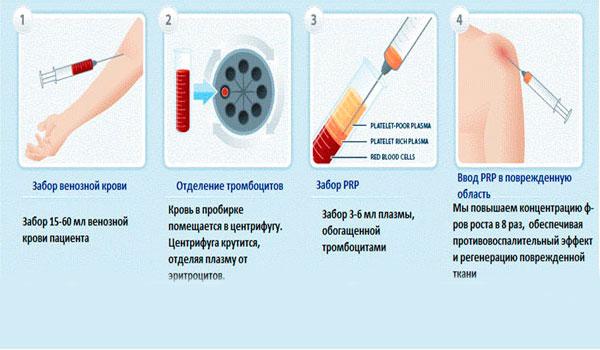Методика PRP терапии