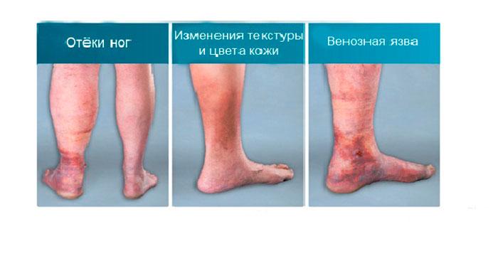 Стадии развития венозной недостаточности нижних конечностей