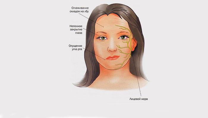 Невралгия троичного нерва