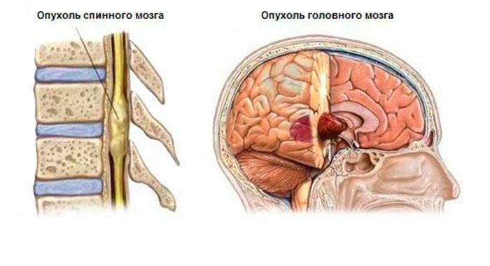 Опухоль мозга у пожилых