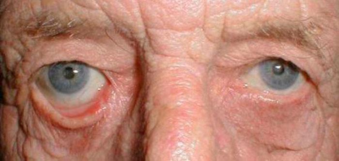 Слезотечение в пожилом возрасте