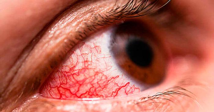 Сильное воспаление глаза при конъюнктивите