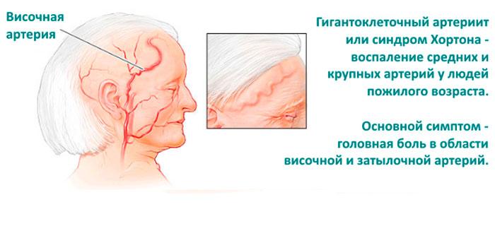 Височный артрит у пожилых