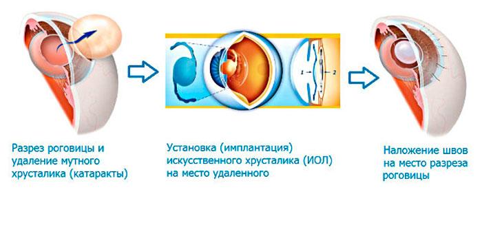 Экстракапсулярная экстракция - метод замены хрусталика