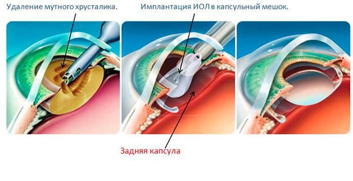 Факоэмульсификация - для замены хрусталика при катаракте