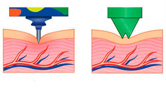 Воздействие пластиковых и металлических игл при равной силе надавливания