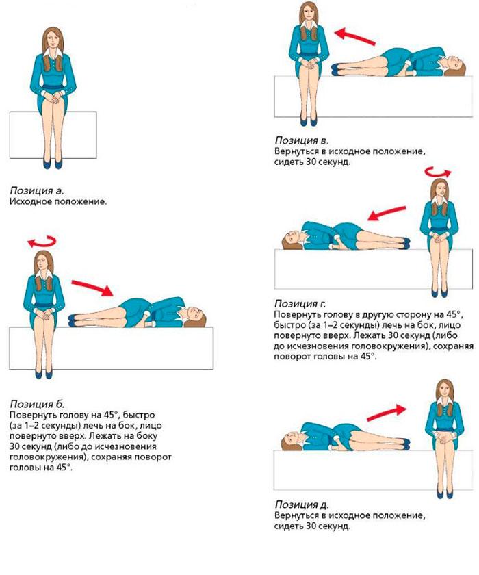 Упражнения для тренировки вестибулярного аппарата