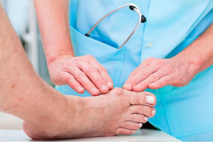 Диагностика гангрены ноги в пожилом возрасте
