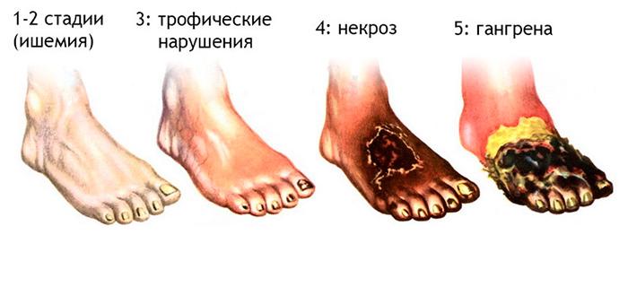 Стадии развития гангрены ноги