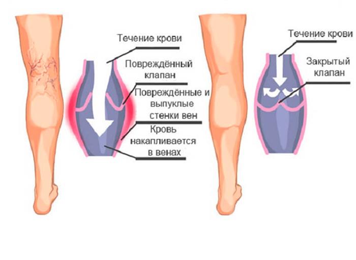 Вены подверженные варикозу и здоровые вены на ногах