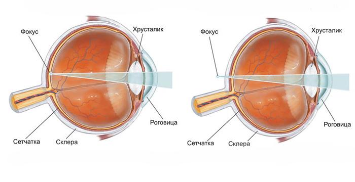 Глаз при нормальном зрении и при возрастной дальнозоркости