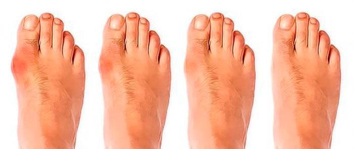Стадии развития бурсита на большом пальце стопы