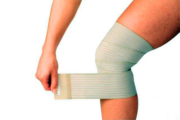 Тейпирование - один из способов лечения бурсита коленного сустава