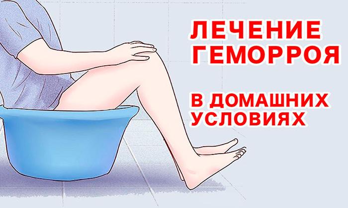 Самостоятельно лечения геморроя