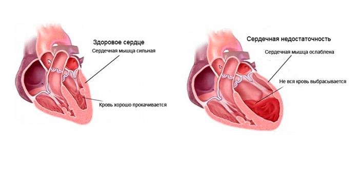 Сердечная недостаточность - причина отеков нижних конечностей