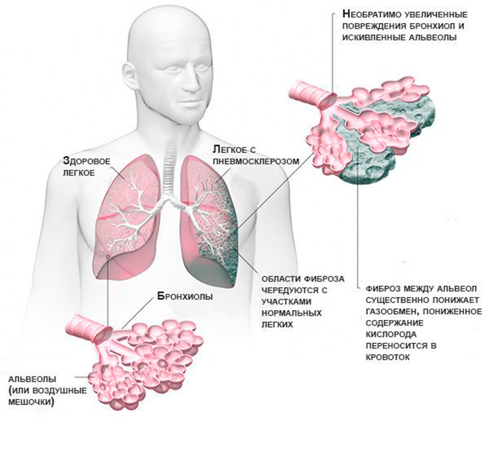 Развитие пневмосклероза легких