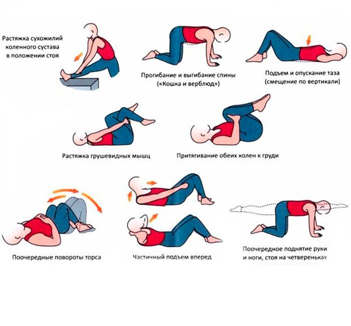 Упражнения ЛФК при пояснично-крестцовом радикулите
