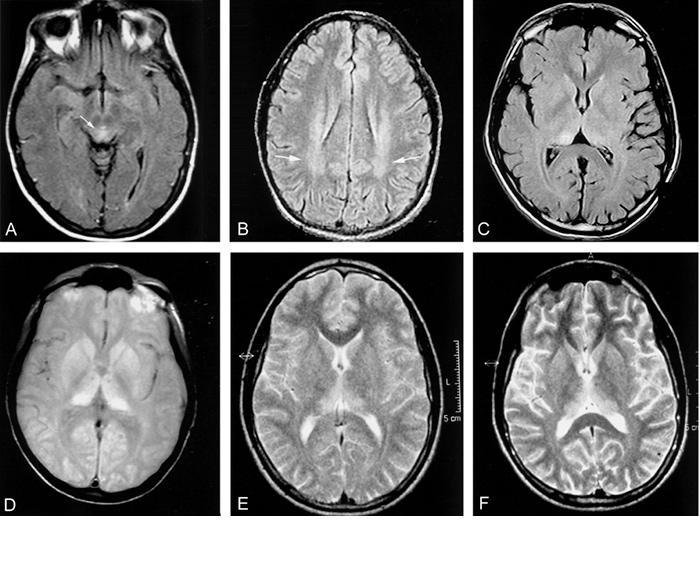 Развитие заболевания Крейтцфельдта-Якоба в мозге на снимке МРТ