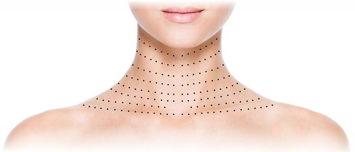 Точки для инъекций биоревитализации на шее