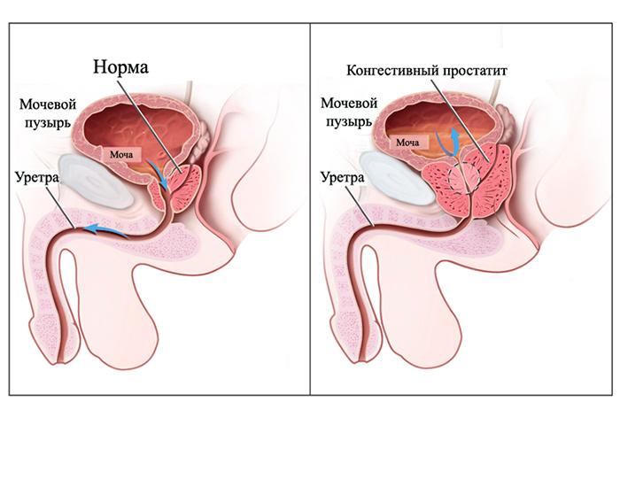 хронический конгестивный бактериальный простатит