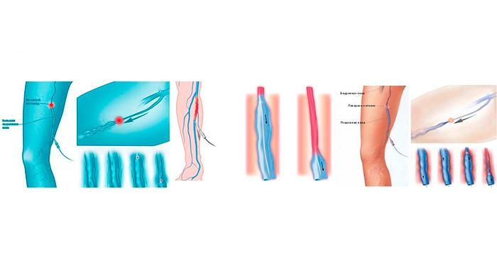 Методика эндовазальной лазерной коагуляции вен (ЭВЛК)