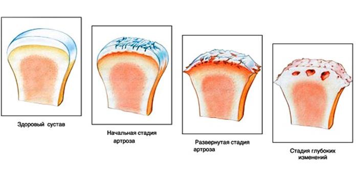 Степени артроза плечевого сустава